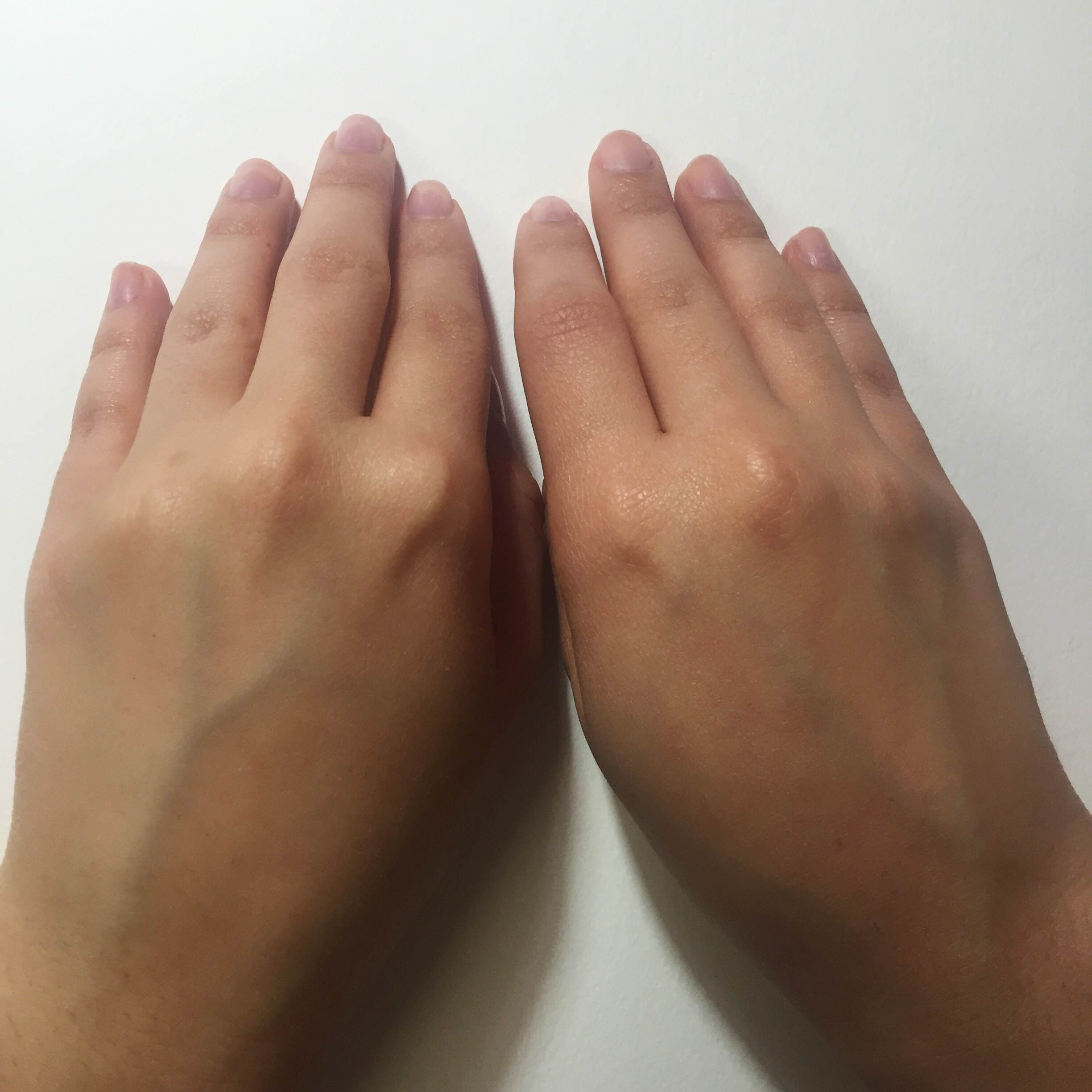 Use Of Hand Gels Img